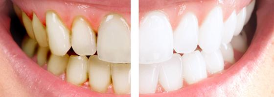 implanty zębowe gliwice